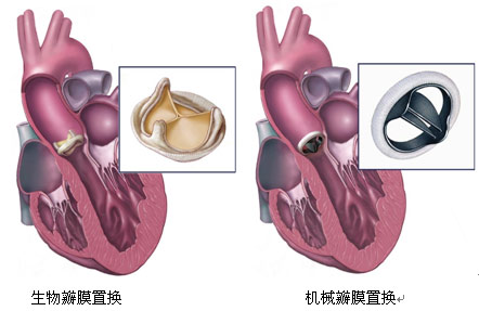 心脏瓣膜病手术前后示意图-科普图集-华夏心血管健康网