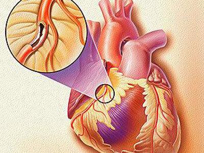 冠脉搭桥手术后应注意哪些注意事项